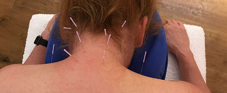 Bild Dry Needling